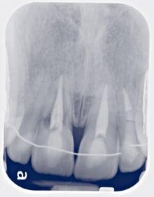Immediate Loading Implants.jpg