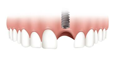 Soft Tissue Management around dental implants.jpg