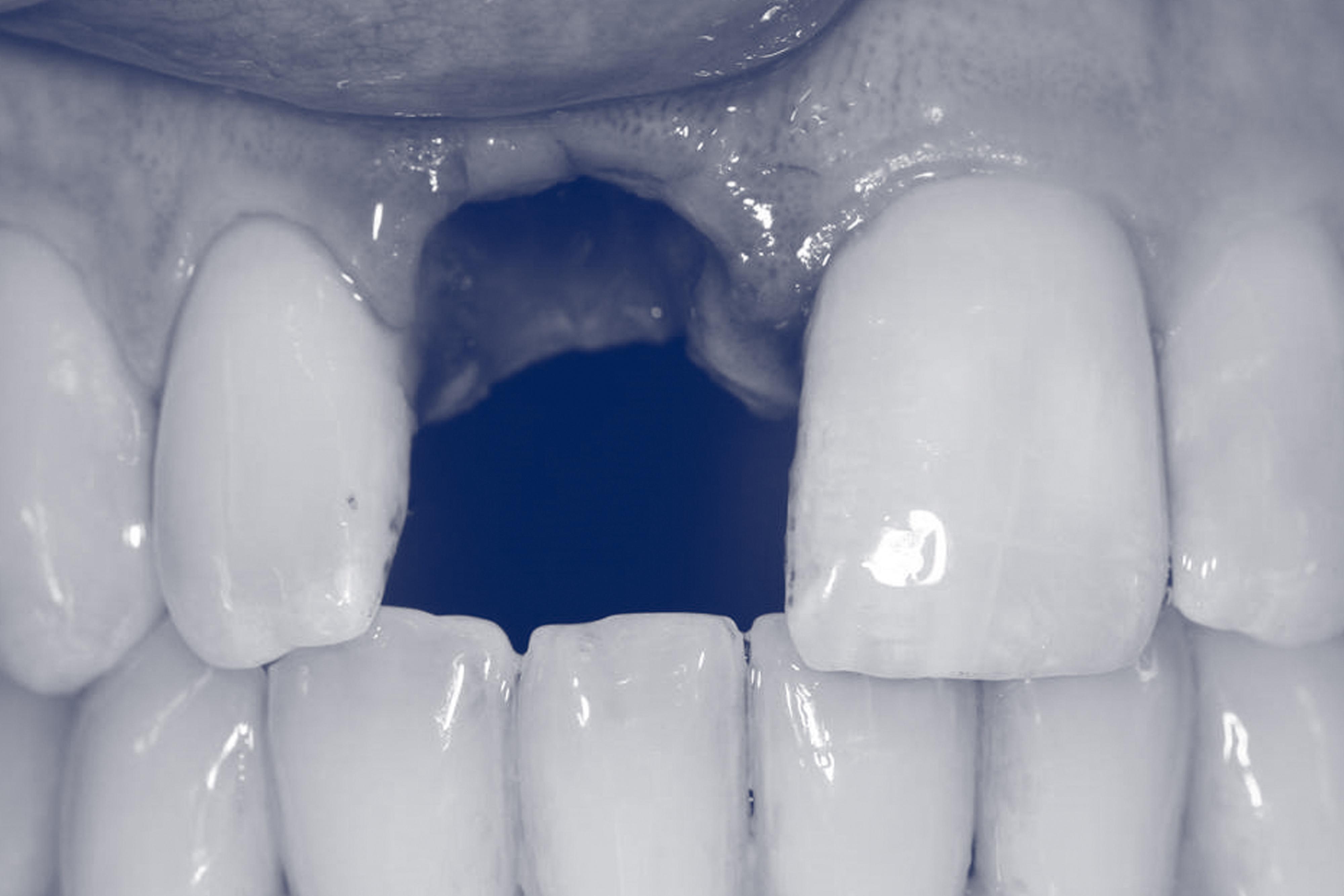 Immediate Loading implant.jpg