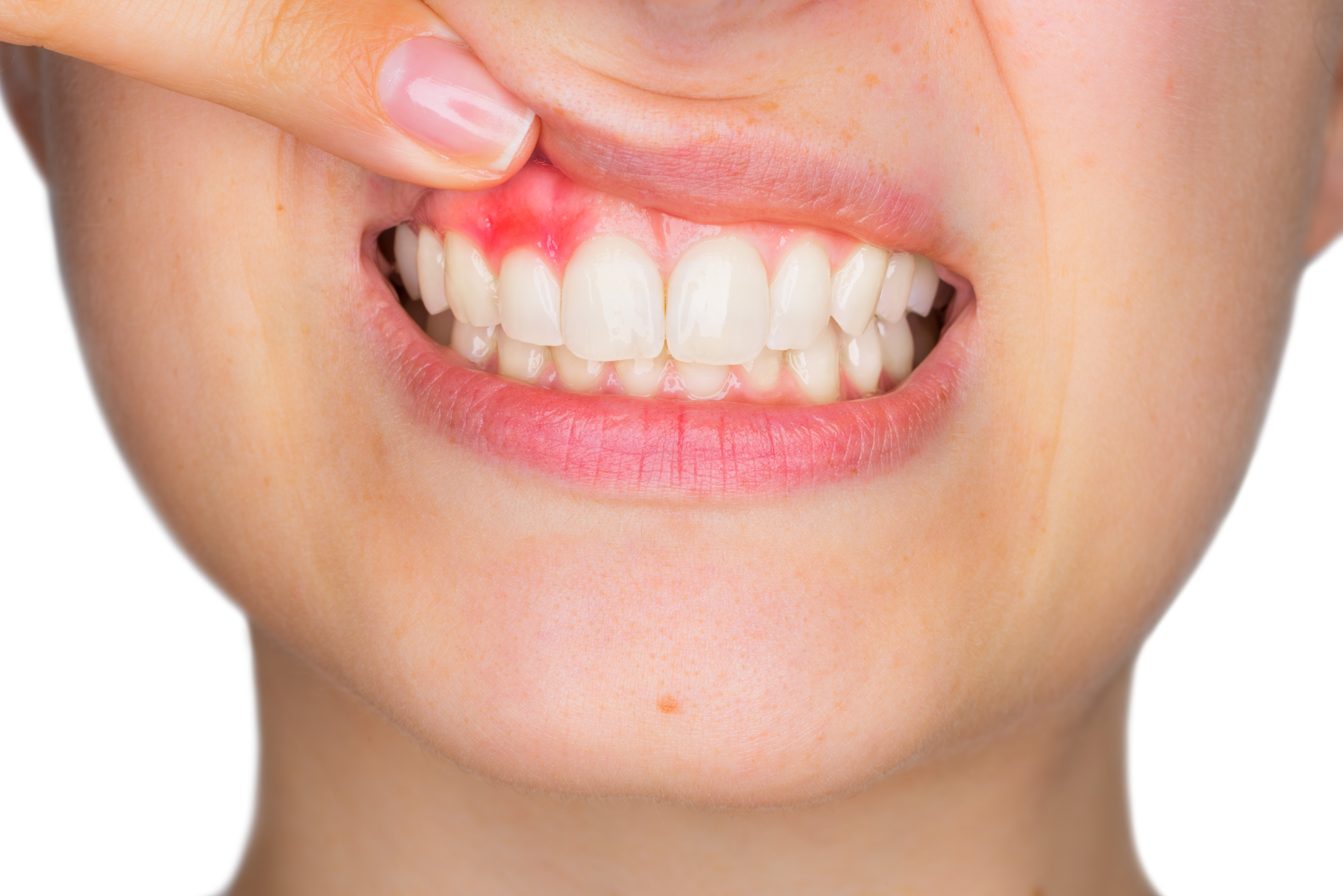Peri-Implantitis: Causes and How They Can Be Managed