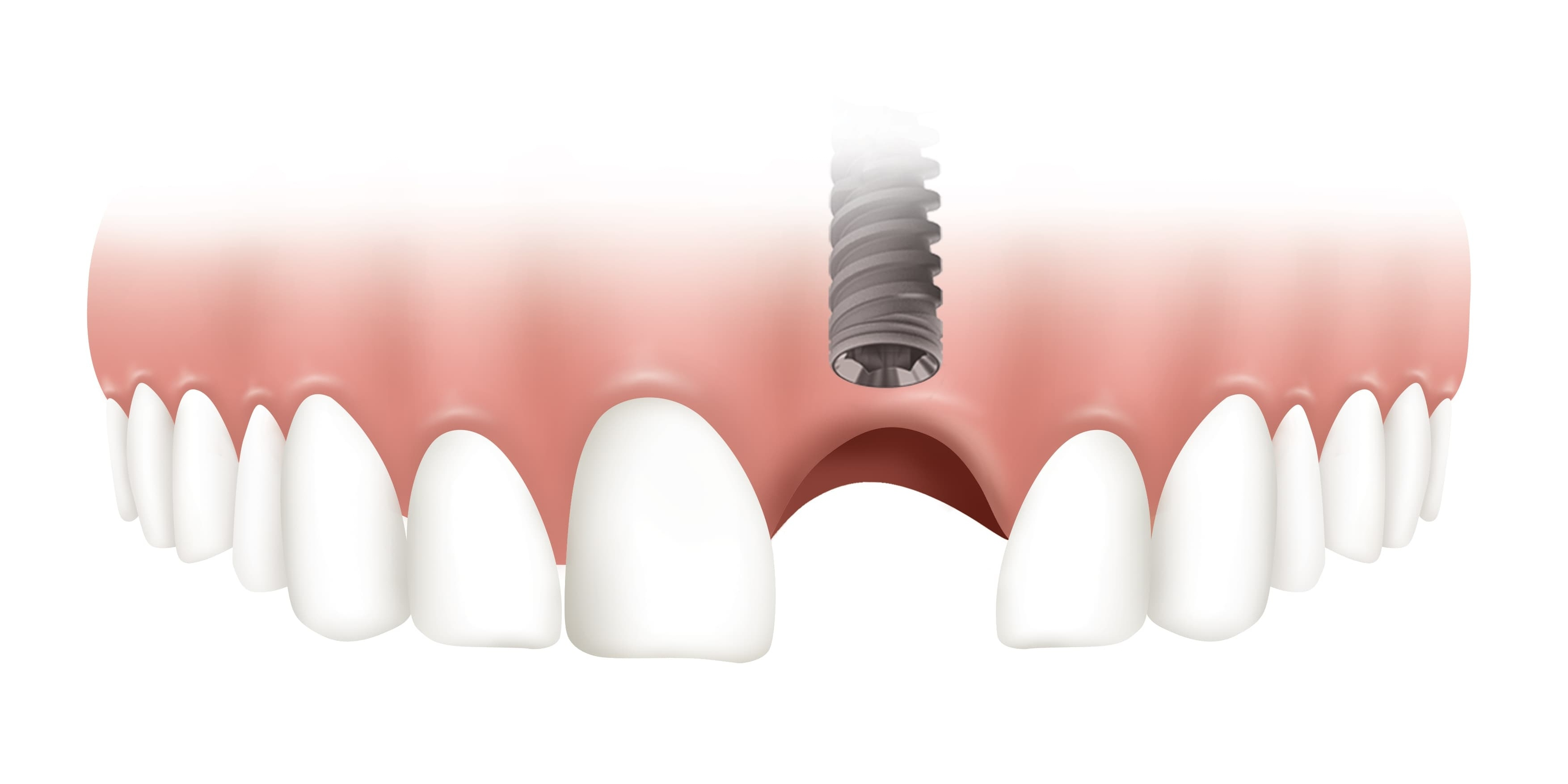 Soft Tissue Management Around Dental Implants and Its Functional Outcomes at Our 2018 Costa Rica Symposium